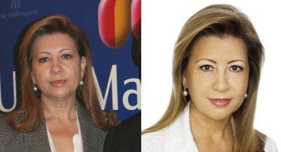 Mar�a Antonia Munar se hace un lifting por los votantes