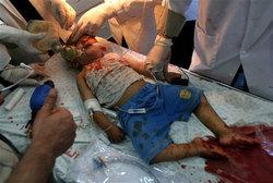 Uno de los niños heridos en el ataque