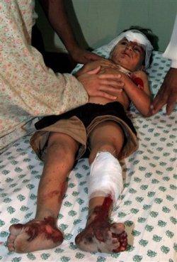 Un niño herido en el ataque de Gaza