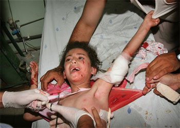 Niños heridos en el ataque israelí